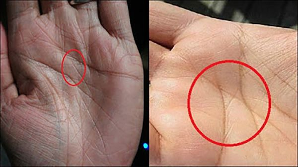 The mystery behind Letter X on your palms (Only 3% of people in the world have it)